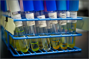 In a photo, a close-up of a couple dozen test tubes in a wire container. Each test tube holds an inch or two of greenish water.