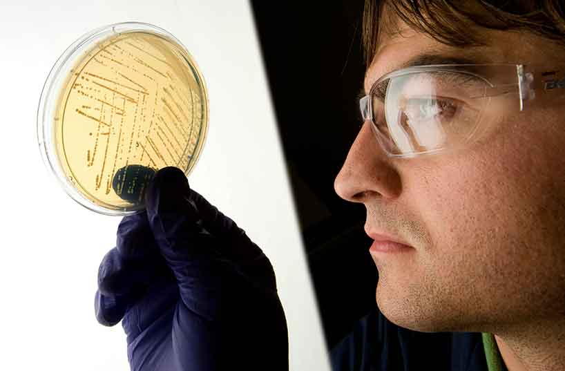 Scientist looking at an agar gel culture plate